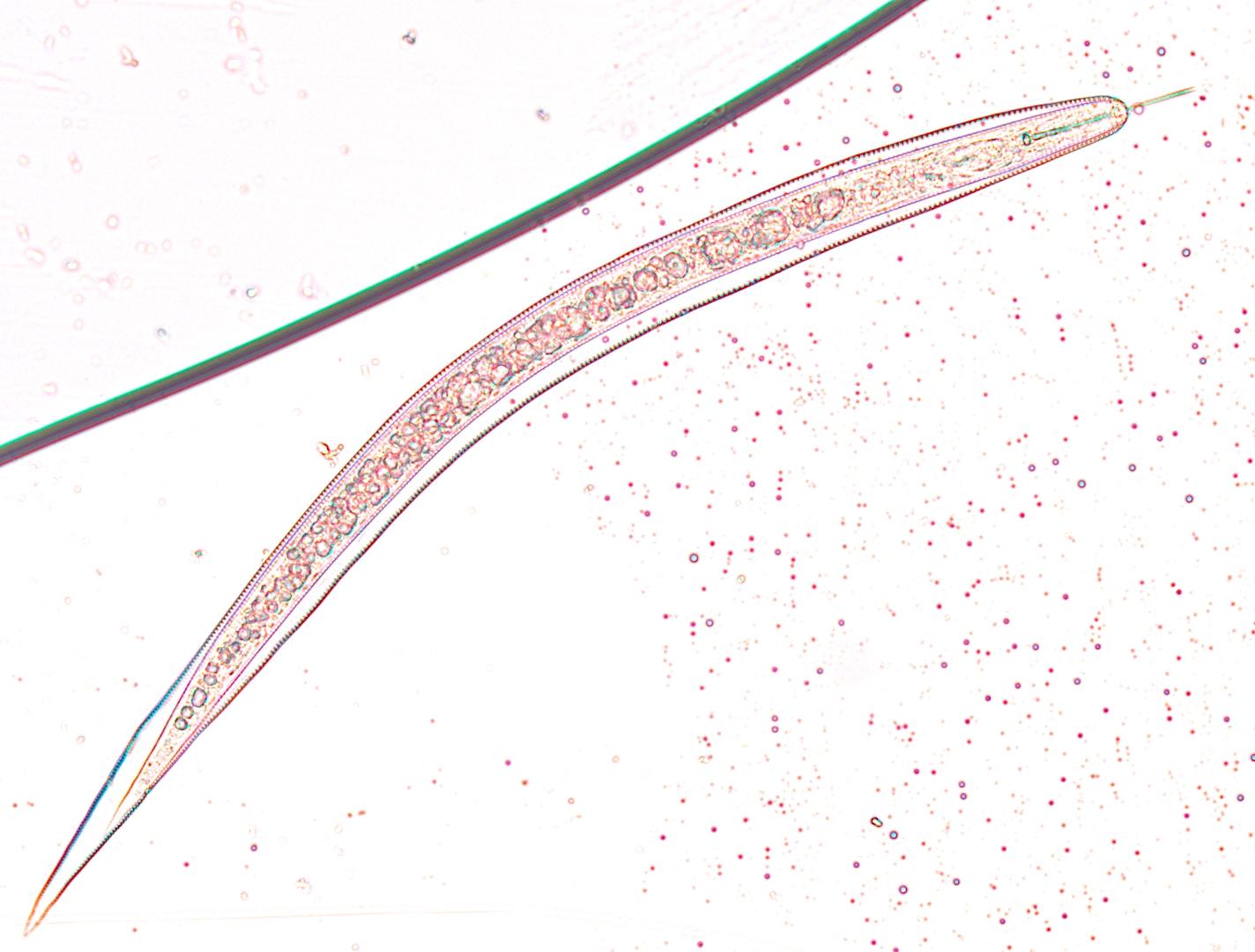 Espécime de Hemicycliophora sp. em amostra de raízes de cafeeiro