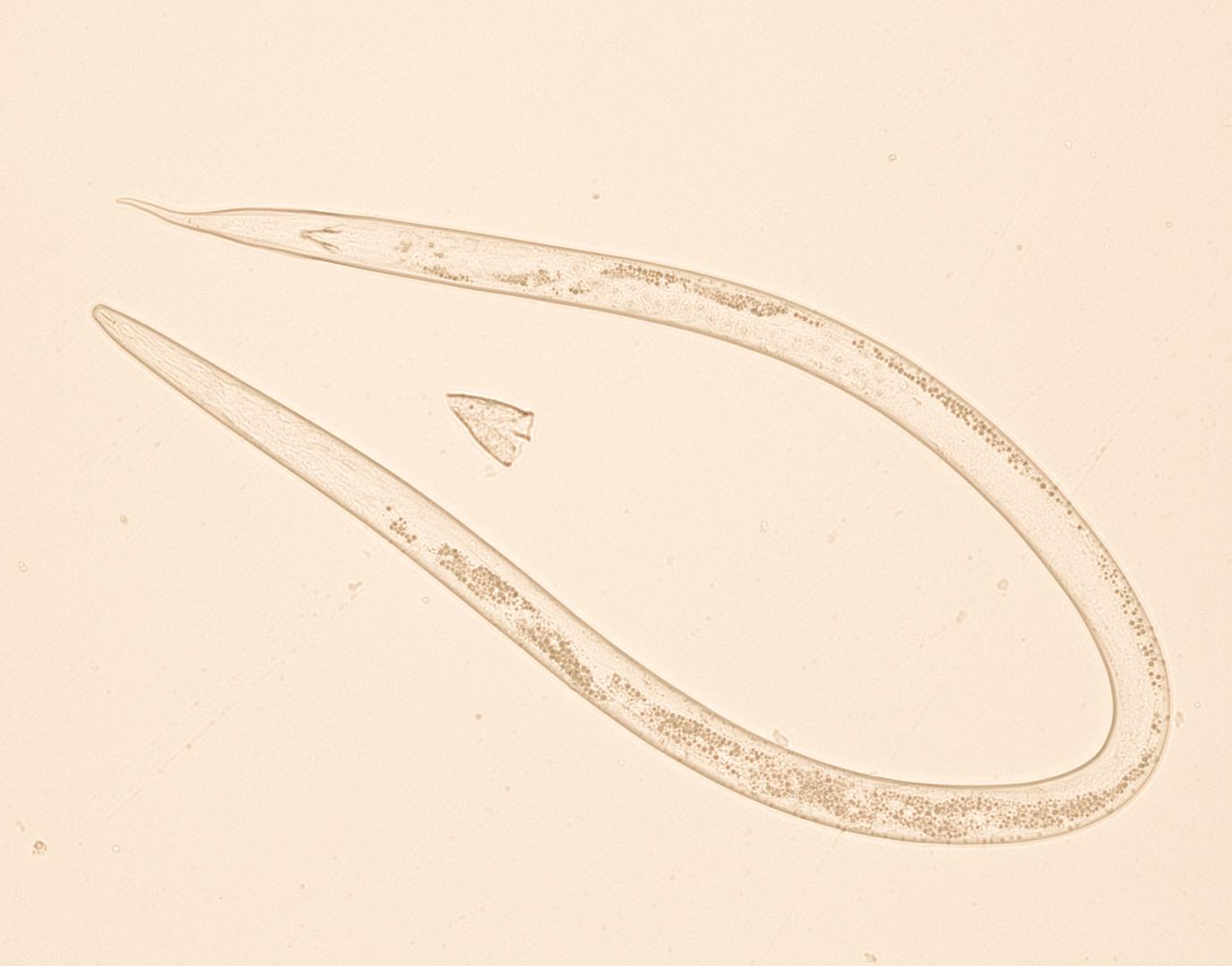Nematoides em amostra de solo de cultura de tabaco