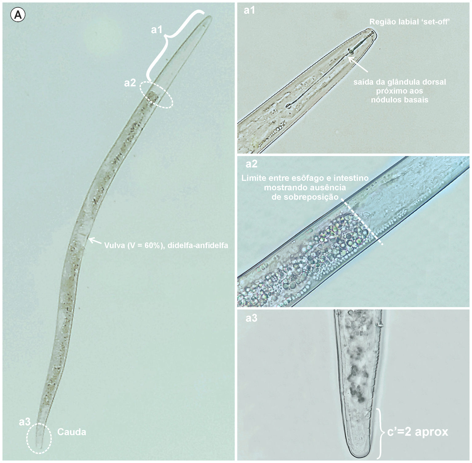 Stunt nematode (Tylenchorhynchus sp.) in soil and roots of paddy rice