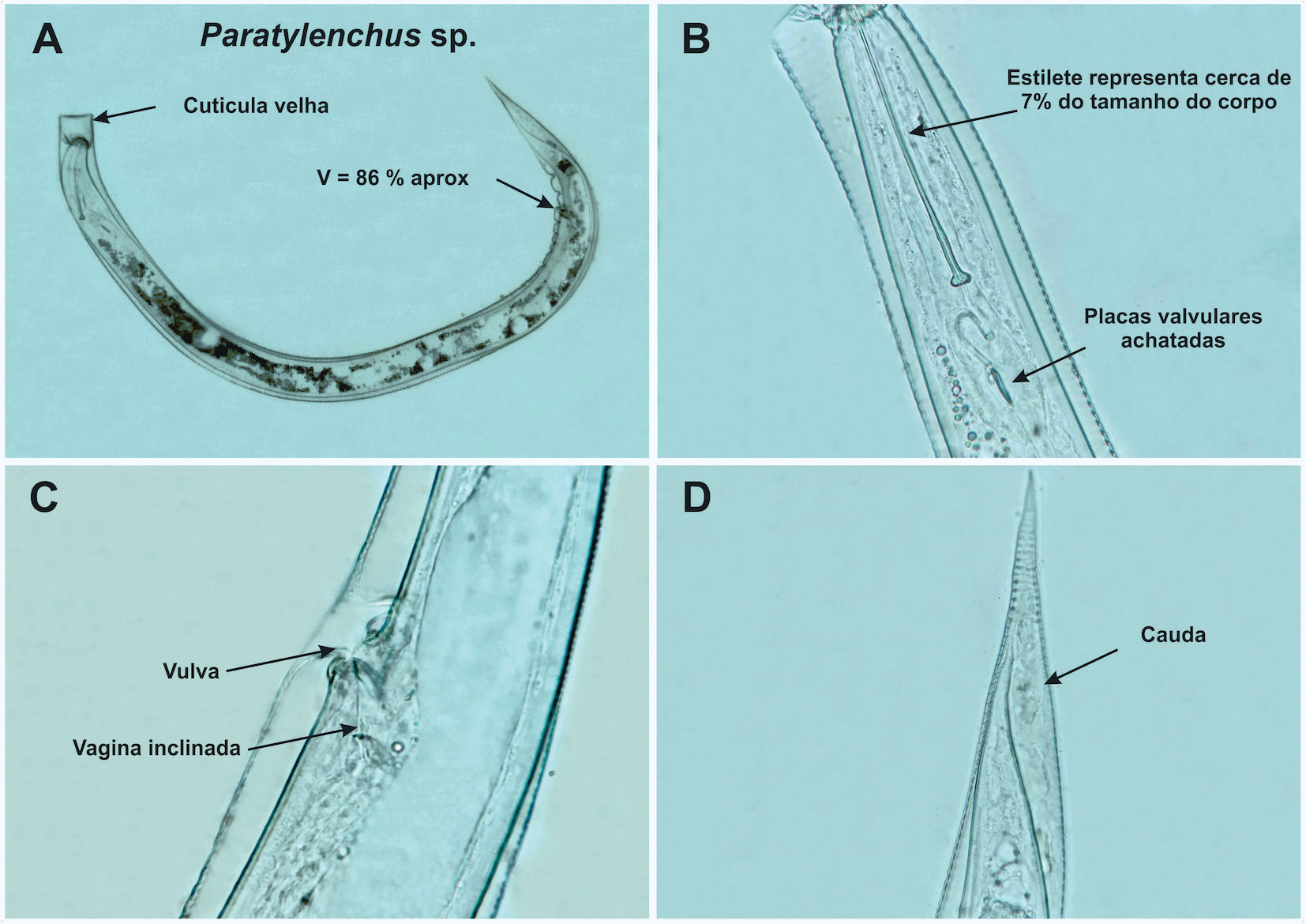 Paratylenchus sp. in peach rhizosphere