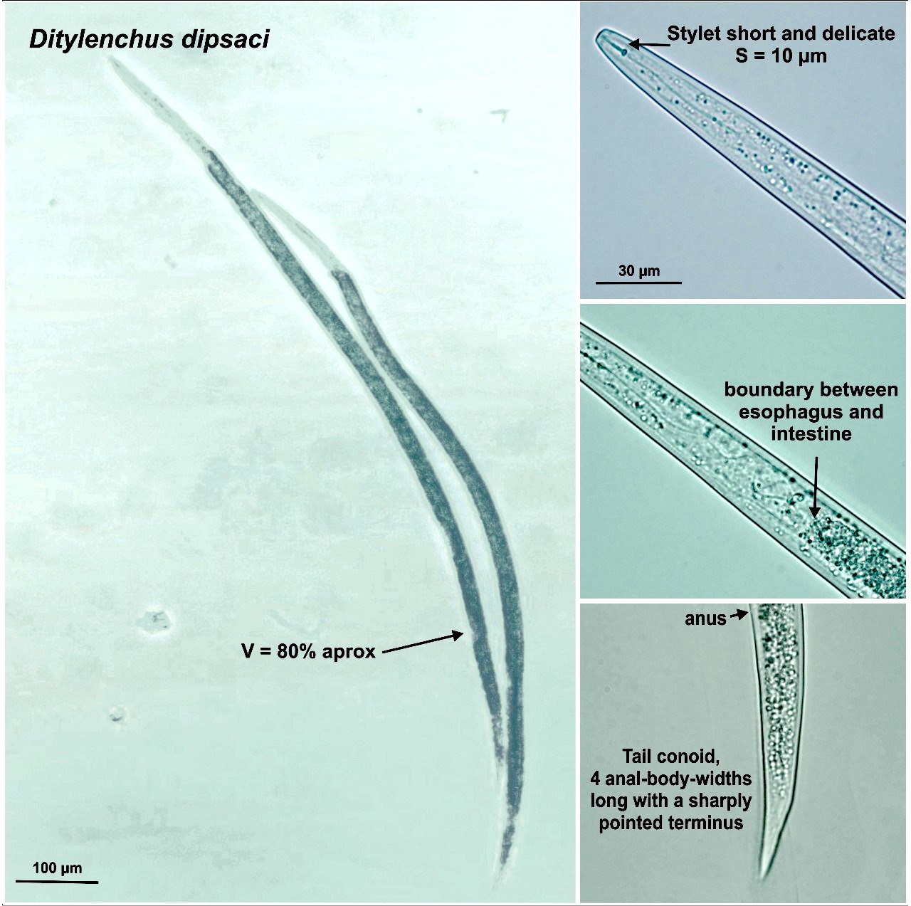 Ditylenchus dipsaci em alho de Flores da Cunha, RS / Stem Eelworm on Garlic